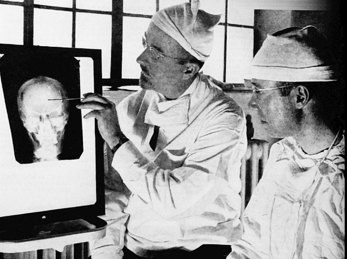 Lobotomie mozku - lobotomie, operace