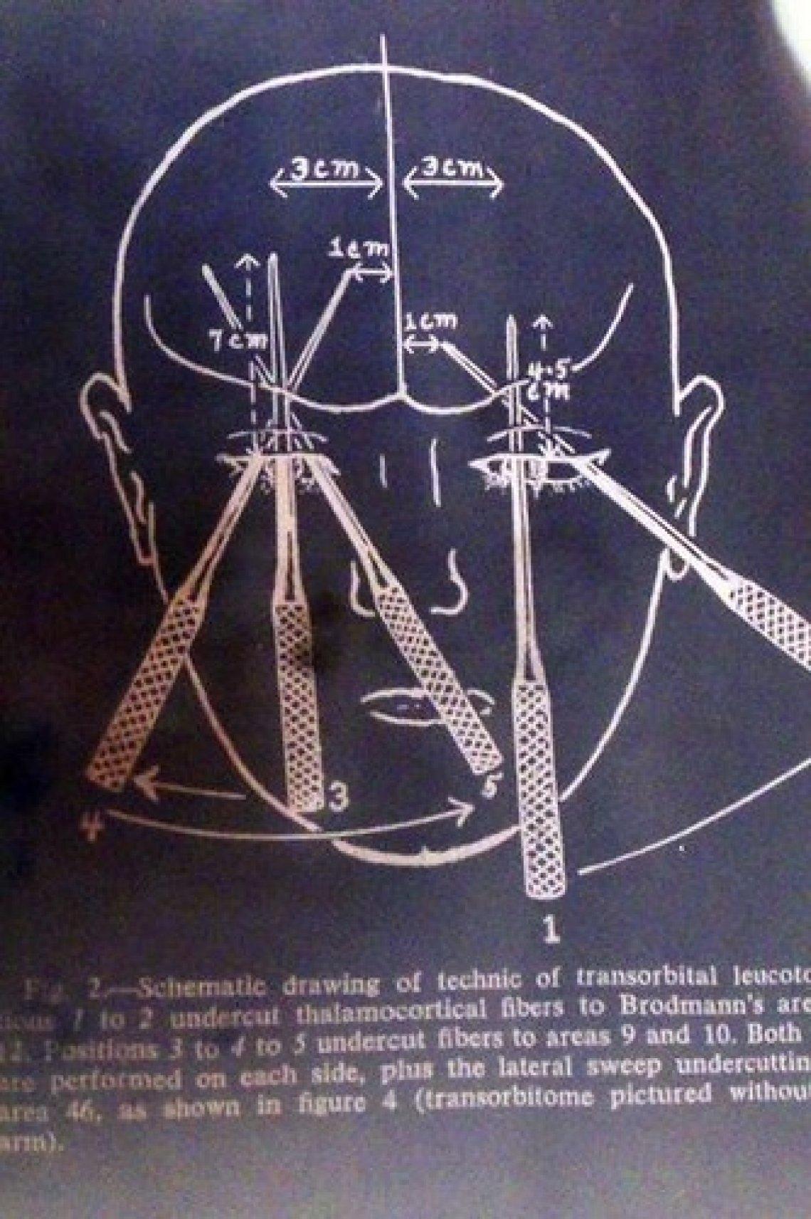 Lobotomie mozku - transorbitální lobotomie