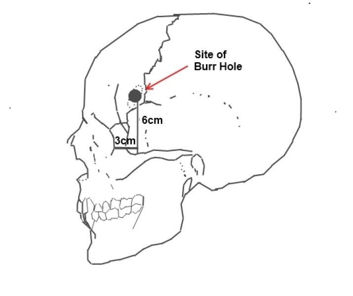 lobotomie mozku - nástroj